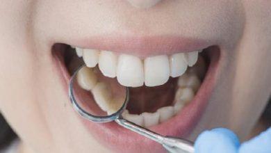 سرطان الفم .. وأعرضه!! - صحيفة هتون الدولية