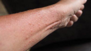 أعراض التهاب الجلد التماسي وطرق علاجه